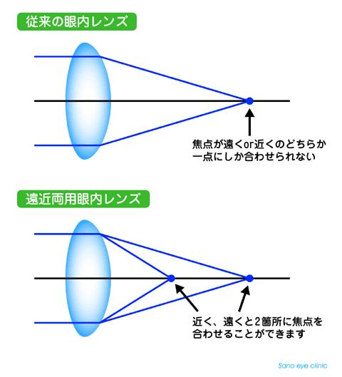 さの眼科: 多焦点眼内レンズ