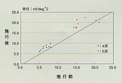 網膜電位図の振幅変化